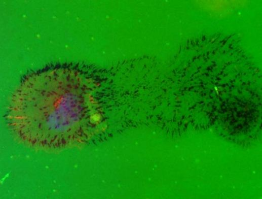 Cell migration across a fluorescently-conjugated matrix. Dark spots are evidence of invadopodia.