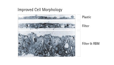 Merck:/Freestyle/BI-Bioscience/Cell-Culture/new-cell-culture-images/ImprovedCellMorphology.jpg